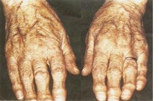 Старение суставов, артрит
